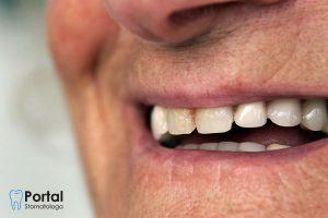 Zęby u osób starszych