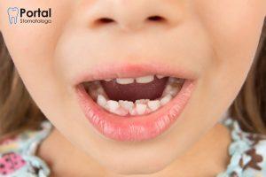 Zęby u dzieci