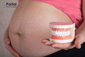 Ciążowe zapalenie dziąseł