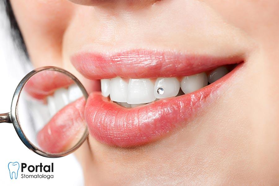 Kolczyki w zębach