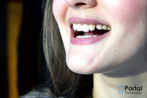 Intruzja zęba