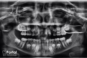Zęby wgłobione