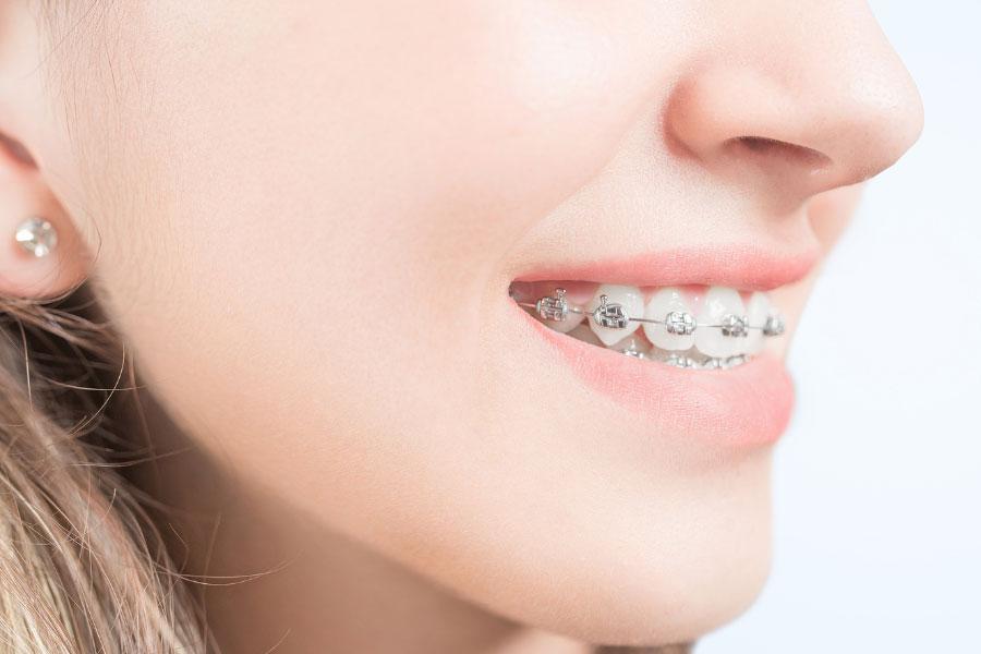 Higiena jamy ustnej przy aparacie ortodontycznym