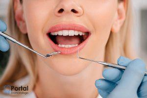 Fizjologiczna ruchomość zębów