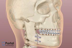 Osteotomia żuchwy