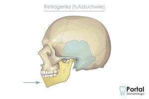 Retrogenia (tułożuchwie)