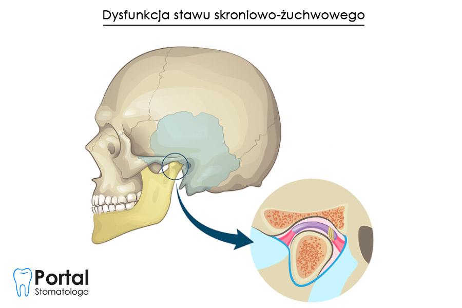 Dysfunkcja stawu skroniowo-żuchwowego