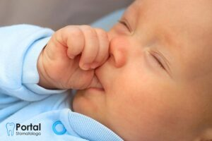 Ssanie kciuka u niemowlaka