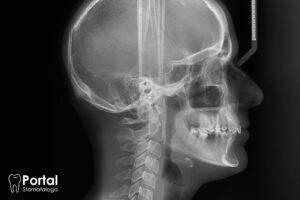 Analiza cefalometryczna
