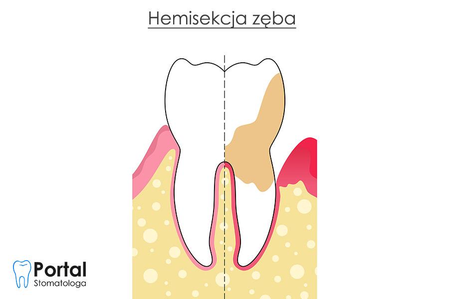 Hemisekcja zęba