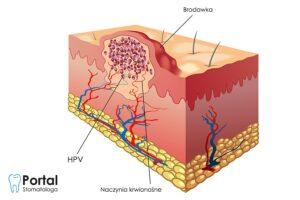 HPV w jamie ustnej